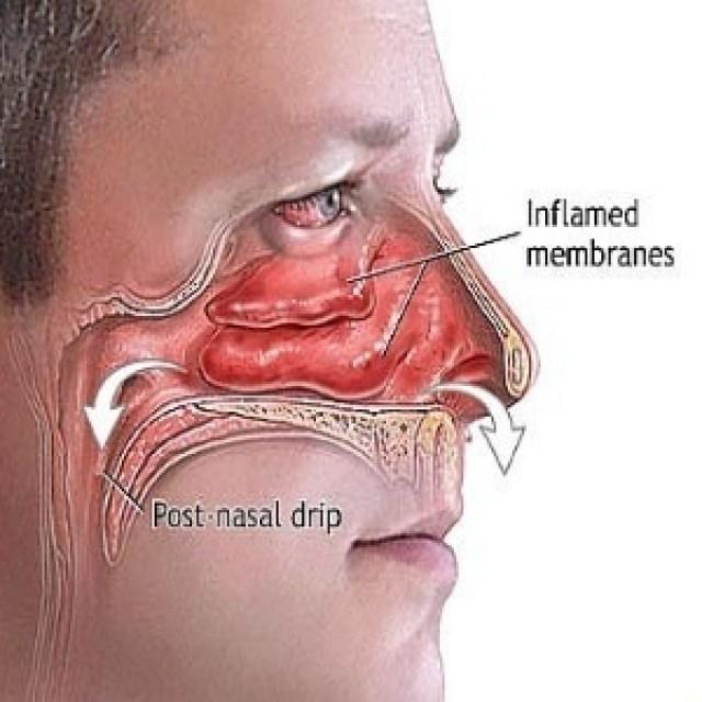 Natural Home Remedies For Sinus Drainage