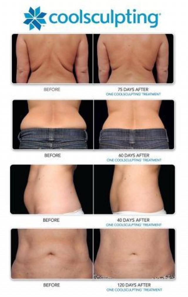 Health And Beauty How Much Does Coolsculpting Cost
