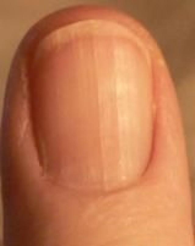 Фото больного ногтя большого пальца