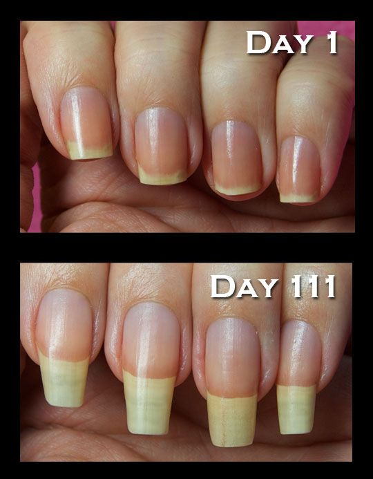 Nail Strengthener Treatment At Home - Beauty Pin #2358524 - Weddbook