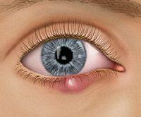 Mariage - 7 Things To Know About An Eye Stye