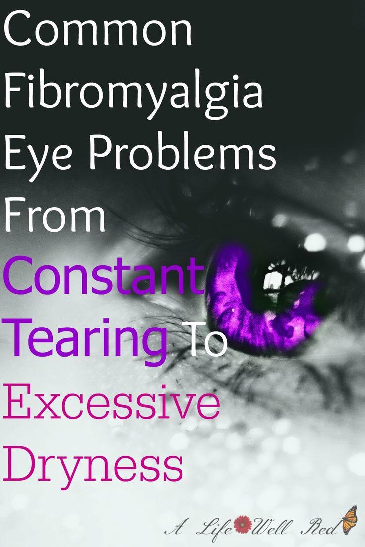 Mariage - Common Fibromyalgia Eye Problems ~ From Constant Tearing To Excessive Dryness