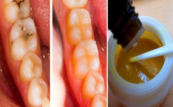 Wedding - Reverse Cavities Naturally And Heal Tooth Decay With THIS Powerful Tooth Mask