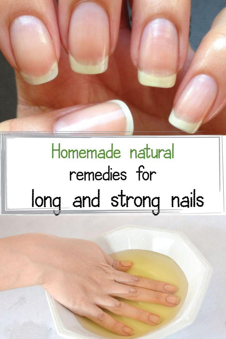 Wedding - Homemade Natural Remedies