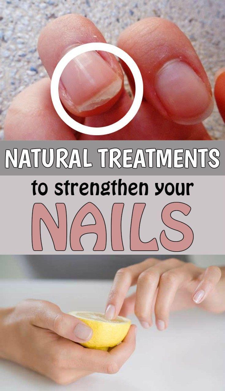 زفاف - Natural Treatments To Strengthen Your Nails - TheBeautyMania.net