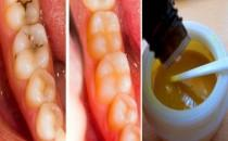 wedding photo - Reverse Cavities Naturally And Heal Tooth Decay With THIS Powerful Tooth Mask